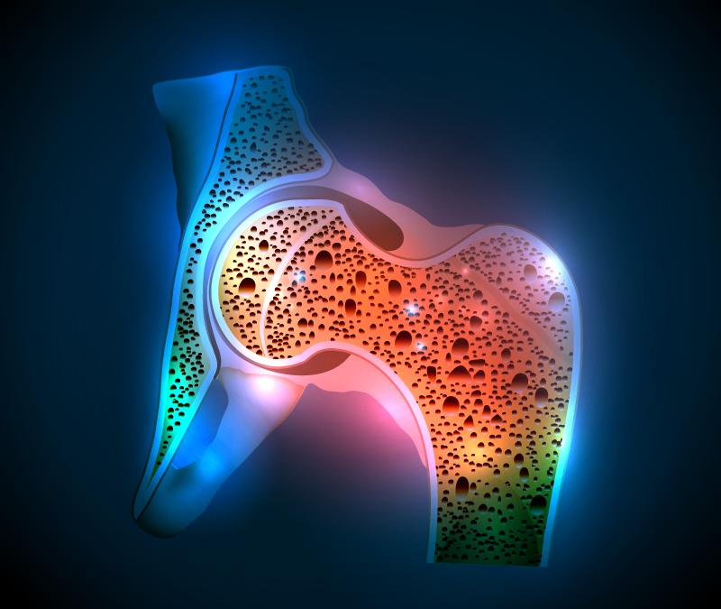 Genetic Factors in Determining Bone Mass